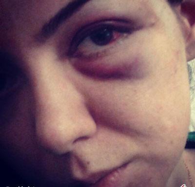 عکس آزاده نامداری 94,کبود شدن چشم آزاده نامداری , کتک خوردن آزاده نامداری ,فرزاد حسنی