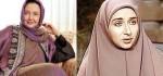 عکس های بازیگران زن ایرانی قبل و بعد از عمل جراحی زیبایی