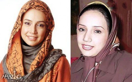 بازیگران زن ایرانی,عکس های بازیگران زن ایرانی,عمل زیبایی بازیگران زن ایرانی
