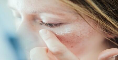 ضد آفتاب روند پیری پوست